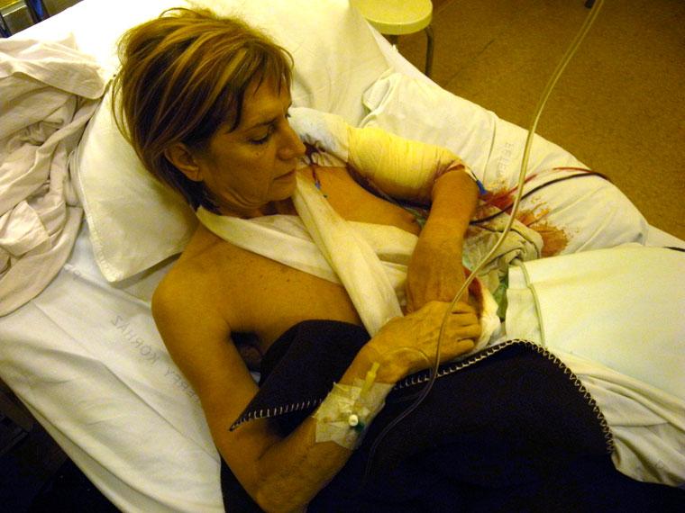 Ildi-műtét-után