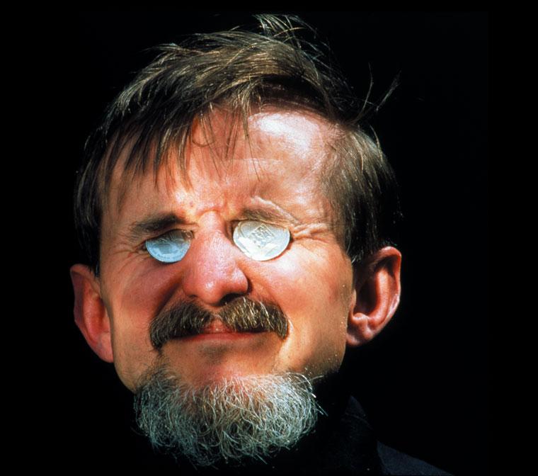 1993-Manfred-Kranczoch-pszichiáter