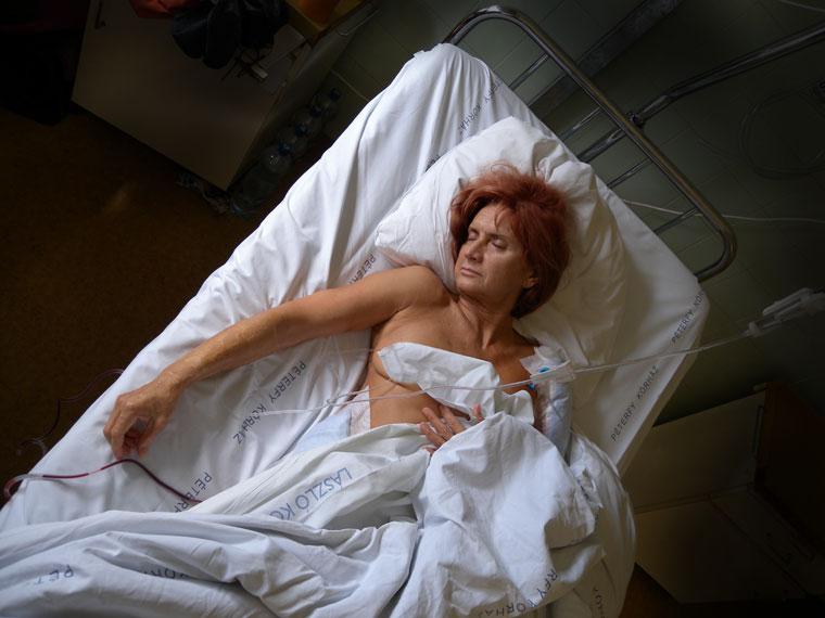 Ildikó-műtét-után