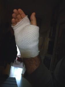 Sérült kezem
